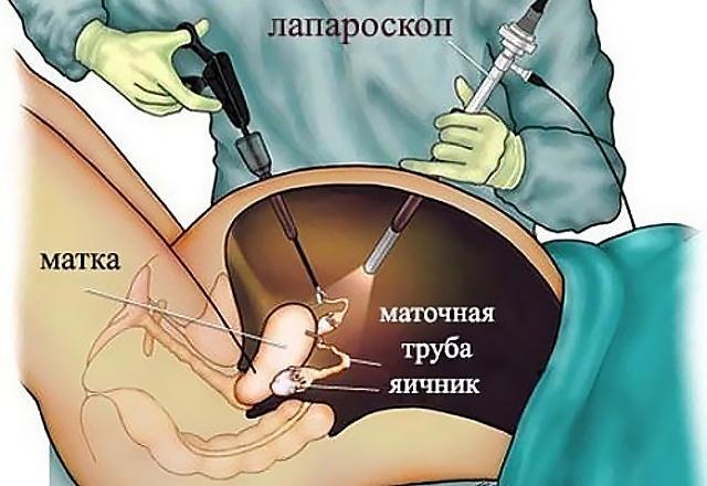 Как проходит операция лапароскопии яичников