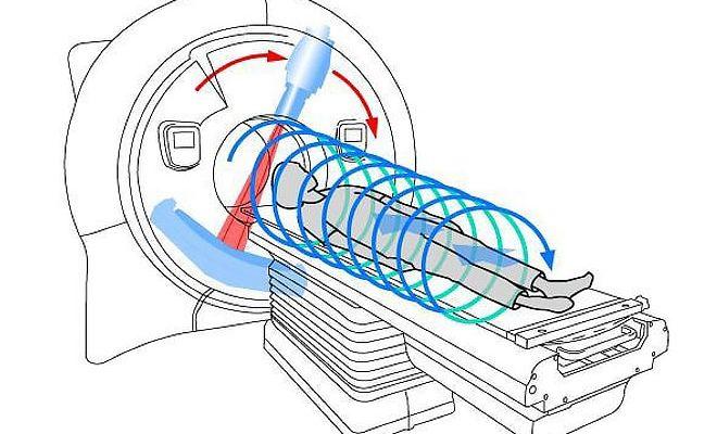 Проведение спиральной компьютерной томографии