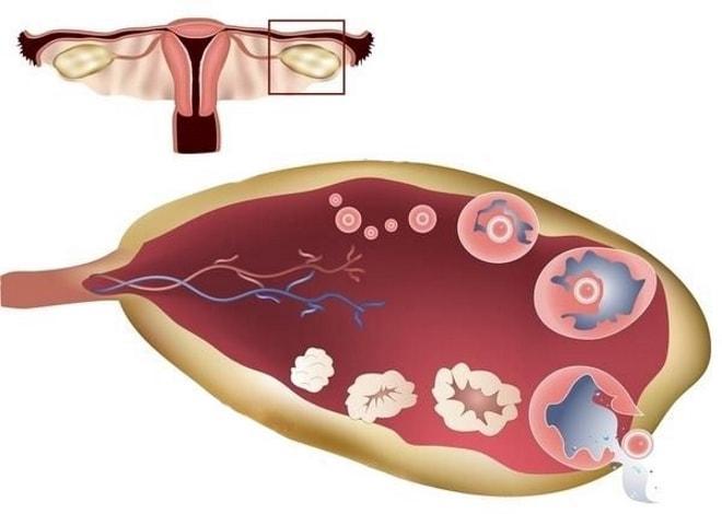 Фолликулометрия у женщин при подозрении на бесплодие