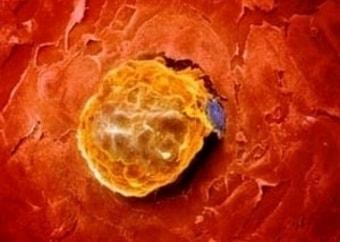 Жёлтое тело яичника у беременной девушки