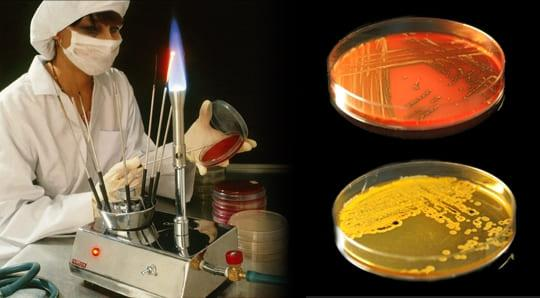 Как проводится бактериологическое исследование