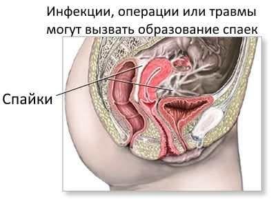 Появление спаек в малом тазу у женщины