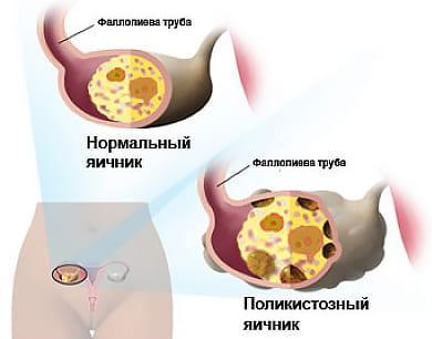 Мультифолликулярность яичника у женщины