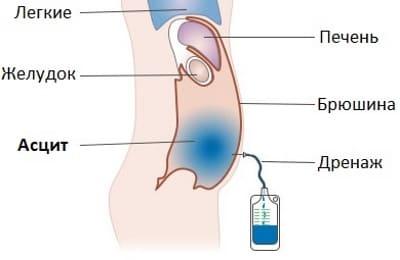 Процедура откачивания жидкости при асците