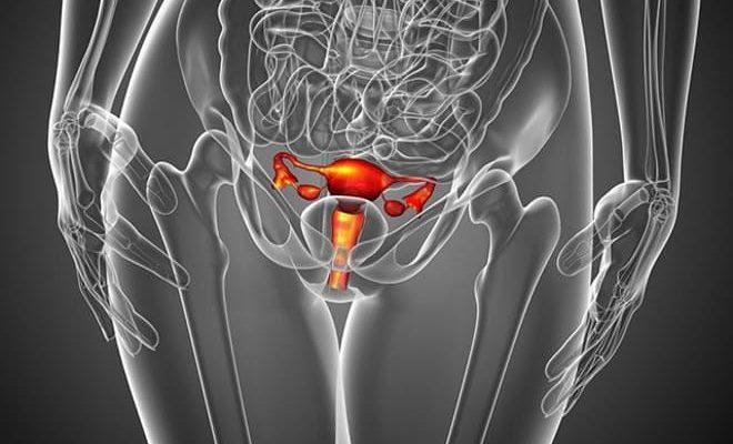 Появление атрофии яичника при наличии кисты придатков