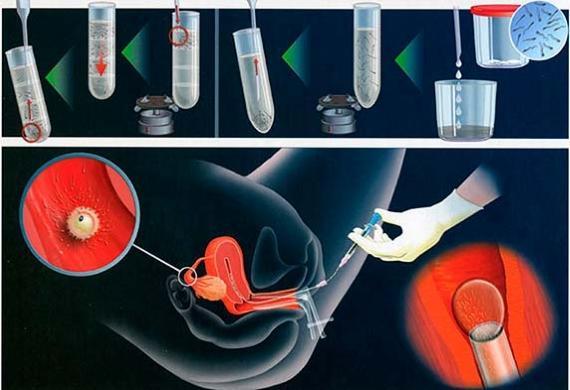 ЭКО при гипоплазии яичников
