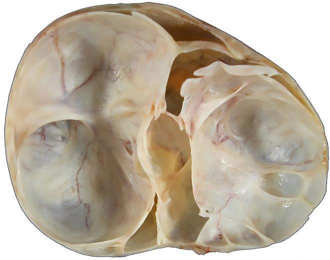Муцинозная киста яичника на фото