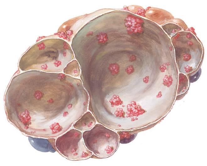 Папиллярная муцинозная цистаденома яичника на фото