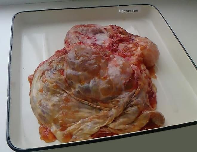 Псевдомуцинозная кистома яичника на фото