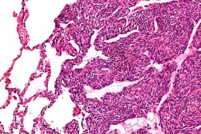 Клетки саркомы женского яичника
