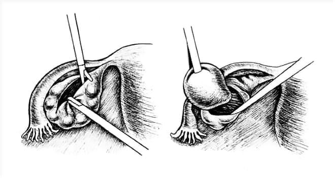 Как проводится цистэктомия яичника лапаротомическим способом