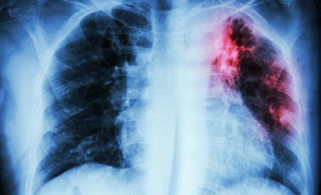 Туберкулёз как прчина появления атрофии яичников