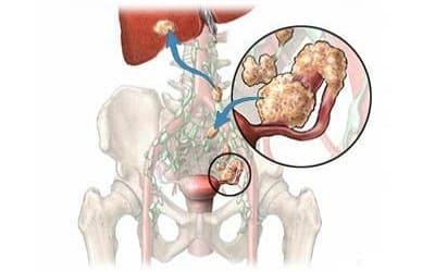 Как проявляет себя рак яичников на последней стадии