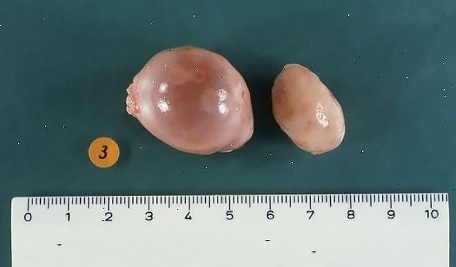 Удалённая паратубарная киста яичника