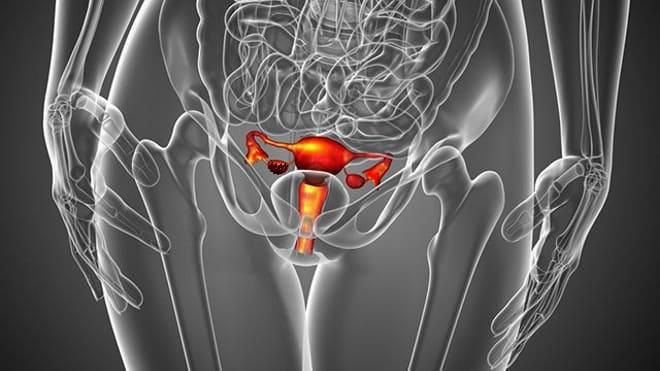 Разрыв правого яичника у женщины