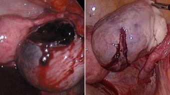 Жжение в яичниках при апоплексии кисты