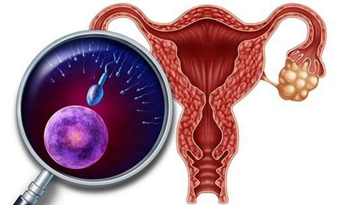 Гиперфункция яичников у женщин
