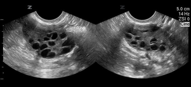 Поликистоз яичников на снимке УЗИ