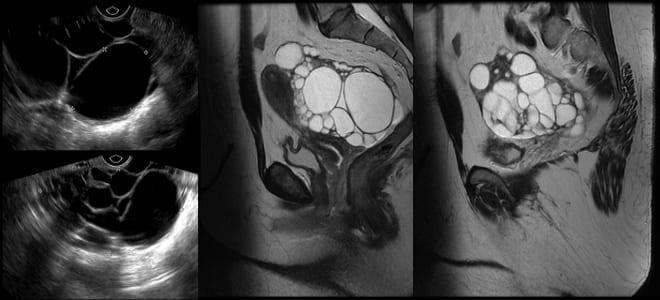 Как выглядит рак яичников на снимке УЗИ