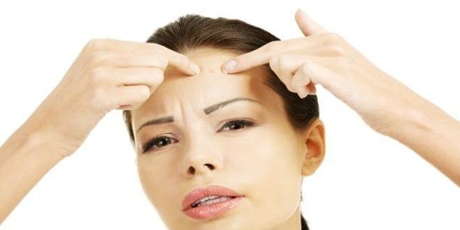 Появление угревой сыпи при дисфункции яичников