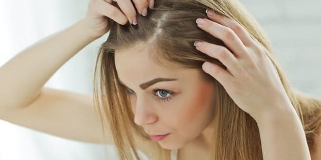 Почему выпадают волосы при дисфункции яичников