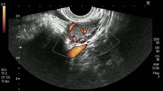 УЗИ кисты жёлтого тела яичника при беременности