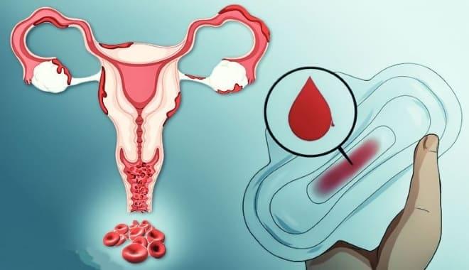 Обильные кровотечения у женщины после 50 лет