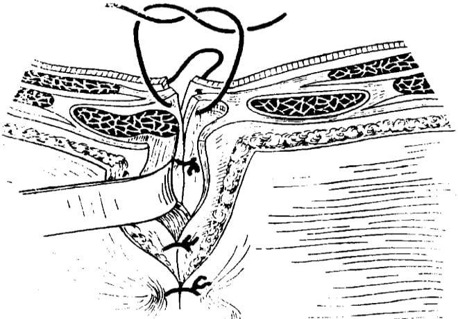 Трансректальная лапаротомия слева