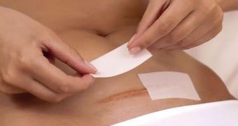 Ухаживание за шрамами после диагностической лапаротомии