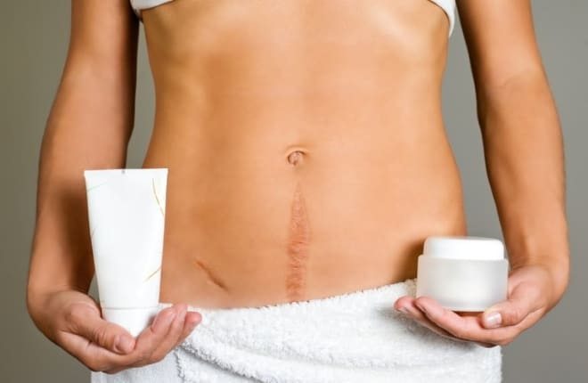Чем мазать шрамы после лапаротомии
