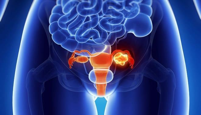Как выглядит воспаление правого яичника у женщины