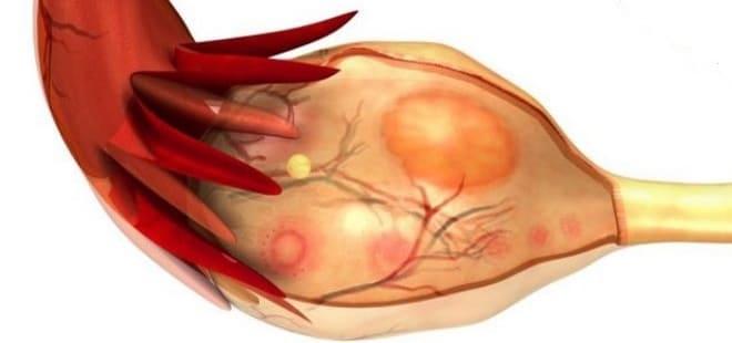 Увеличение жёлтого тела в яичнике до больших размеров