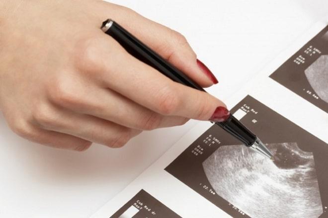 Врач выявил кисту желтого тела левого яичника при беременности