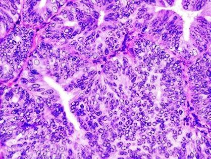 Метастазы при аденокарциноме