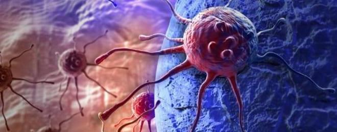 Метастазирование при 3 стадии аденокарциномы яичника