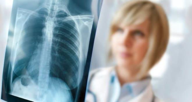 Флюрография лёгких при двухстороннем оофорите