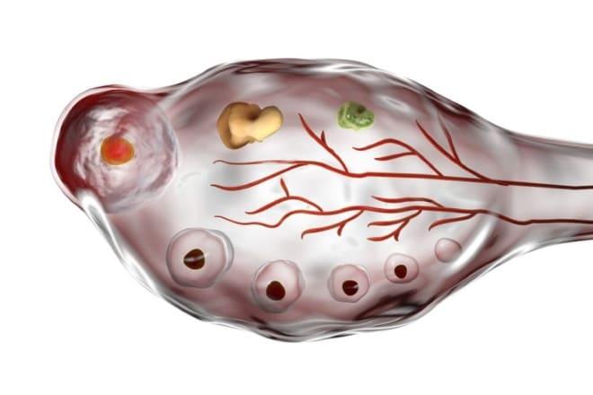 Влияние гормонов на поликистоз яичников