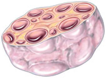 Поликистозный яичник в разрезе